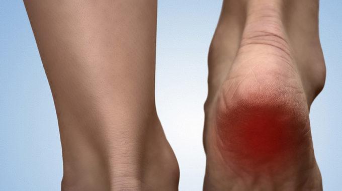 Heel Pain / Plantar Fasciitis In Runners